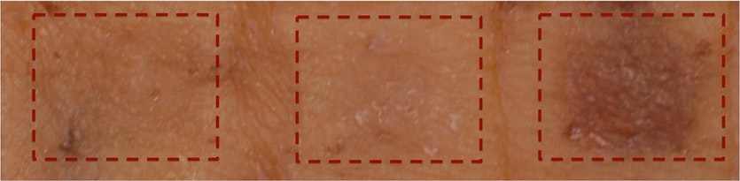 Human breast skin explants treated with topical drug showing induced pigmentation.