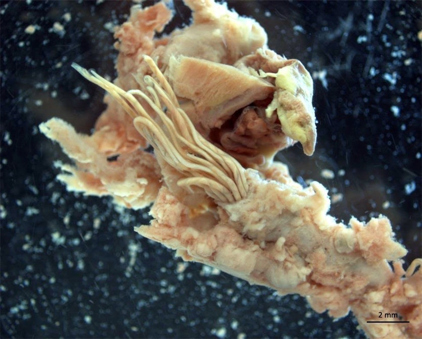 The noodle-like creatures at the centre of the images are adult rat lungworms emerging from the pulmonary artery of a rat.
