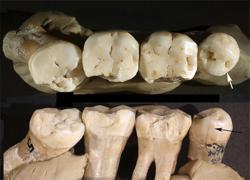 The four Neanderthal teeth showing signs of toothpick use, including the twisted premolar.