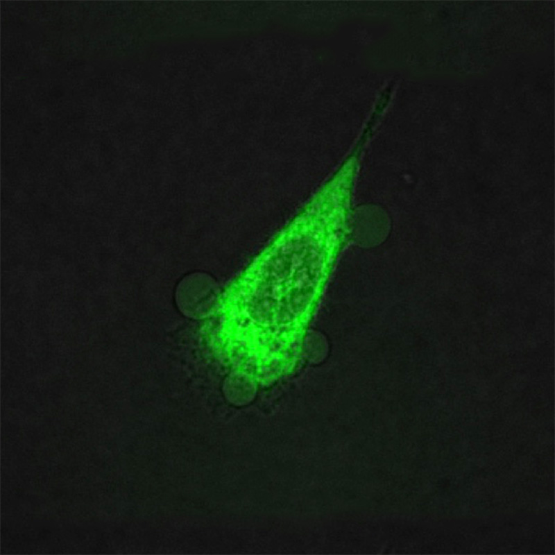 A human prostate cell under attack by molecular drills. Four blobs can be seen where the drills have punctured the cell and cytoplasm is beginning to ooze out.