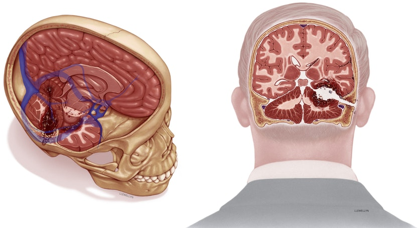 An illustration mapping the extent of the damage to Senator Kennedy's brain.