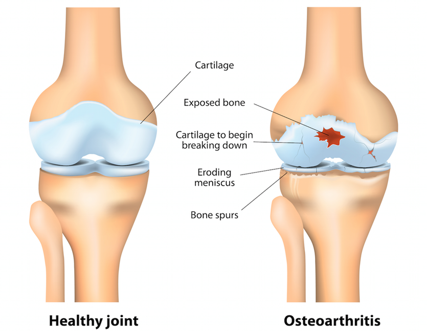 A healthy and an osteoarthritic joint.