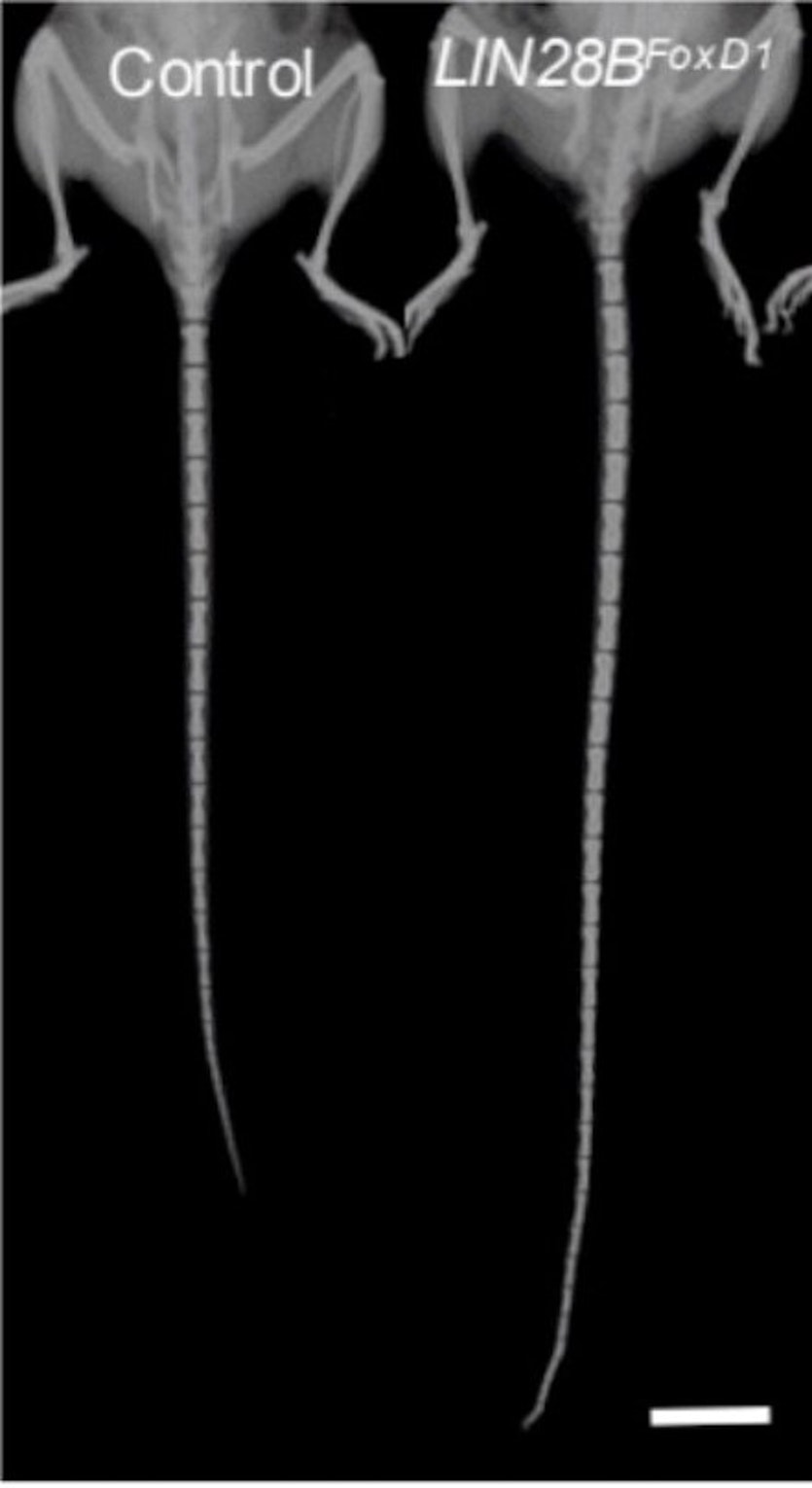 X-rays of control and FoxD1-LIN28B-induced animal from the Harvard study.