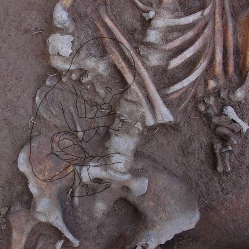 A female from Neolithic Vietnam (2100-1050BCE) and her unborn, full term infant in breech.