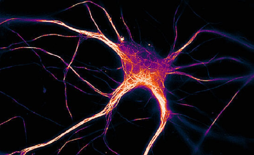 A functioning brain cell that is expressing diseased tau.