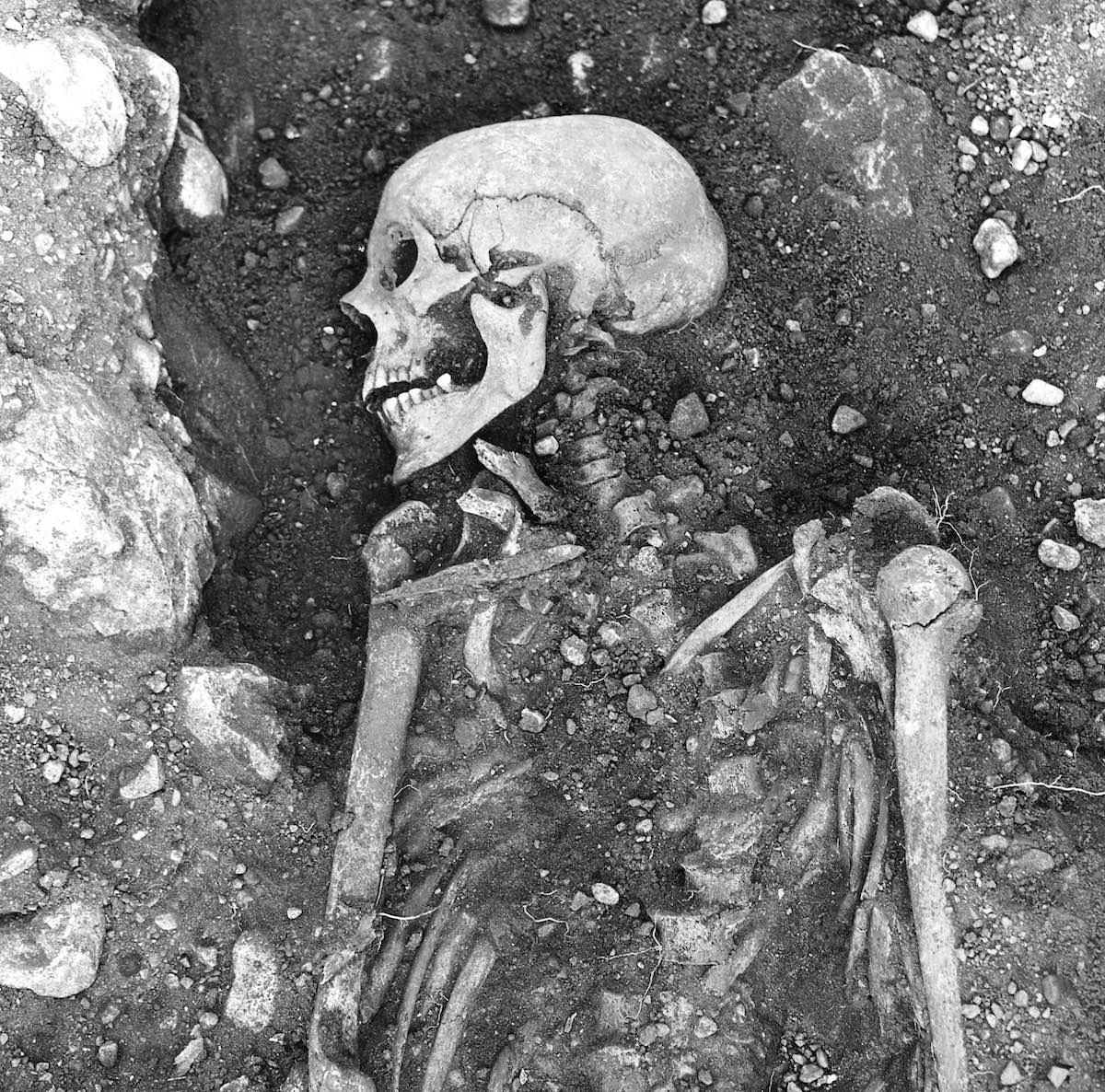 Viking skeleton_smallpox