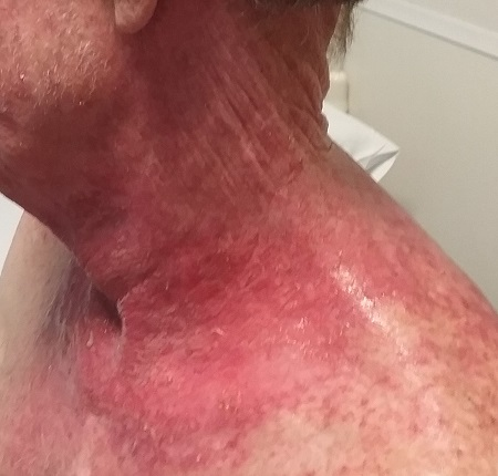 radiation burns_radiation therapy_cancer treatment